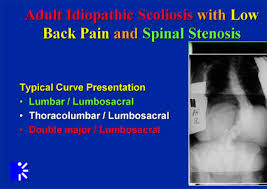 Scoliosis Degrees Of Curvature Chart Managing Scoliosis Stenosis With Low Lumbar Degeneration