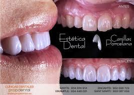 carillas dentales complementa invisalign con las carillas dentales