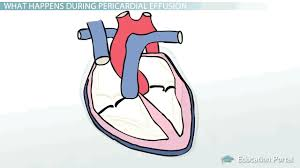 pericardial sac pericardial effusion causes symptoms and treatment