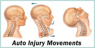 Image result for auto injury aNd whiplash