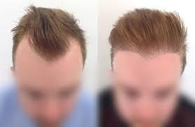 FUT hair transplant in Islamabad