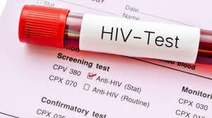 Tư vấn xét nghiệm HIV thông thường