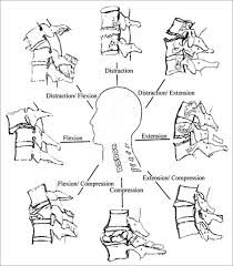Figure 9 a diagrammatic representation of the forces acting on the cervical spine