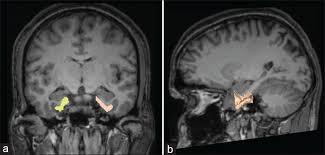 「Entorhinal Cortex」の画像検索結果