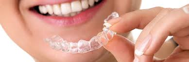 types of sports mouthguards to protect