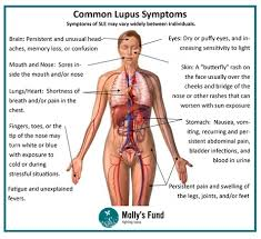 Image result for lupus