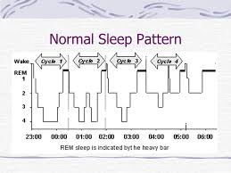 Normal Sleep Pattern Adorable Diplomate American Academy Of Sleep Medicine Ppt Download