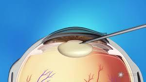 Phacoemulsification Cataract Surgery Youtube