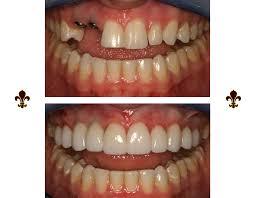 Danville Dental Implants | Implant Supported Restorations \u0026 More