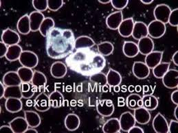 dark field microscopy live blood analysis dark field microscopy explained youtube