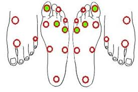 Diabetic Foot Exam Chart Development Of Assessment And Screening Tool To Assist With