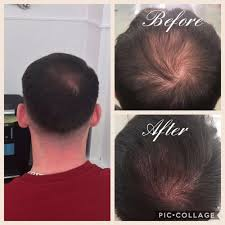 Image result for scalp pigment