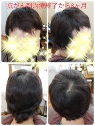 抗がん剤治療から8ヶ月くせ毛と前髪の薄毛が気になる
