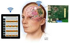 Resultado de imagen para implante cerebral