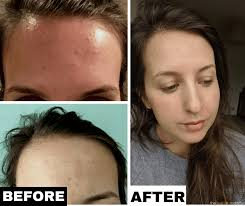 how i cleared the tiny ps on forehead how i cleared my acne