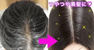 pop ヘアージュS→C SP2 | 関連グループ会社案件専用/大元 | 脱毛症, 薄毛 女性, 白髪染め