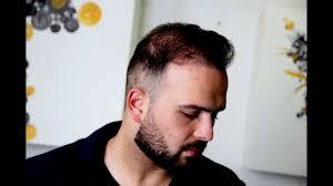 Mannen Haarstijlen Top 5 Zomer Kapsels Voor Volgens B4men