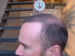 hair transplant repair cost