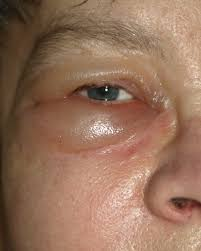 puffiness may be as a result of allergies and very common during summer months