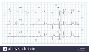 Heart Cardiogram Chart Vector Illustration Of Wave Form On