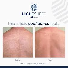 damaged by the laser the hair will no longer grow from that area this treatment can help people who suffer from irritation when shaving ingrown hairs