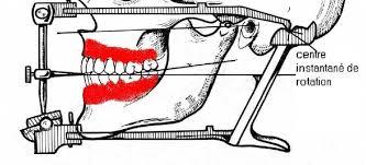 """Résultat de recherche d'images pour """"articulateurs semi adaptable dentaires prothèse totale"""""""