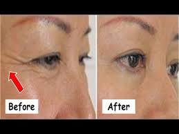 how to remove under eyes wrinkles naturally powerful home remes which really works