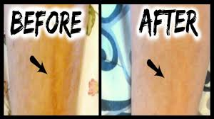 Mederma Advanced Scar Gel Review Results L Scar Before After