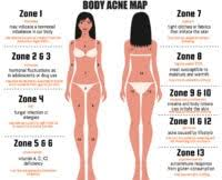 What Your Acne Map Is Telling You The Chalkboard