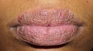 dark lips causes of lip discoloration