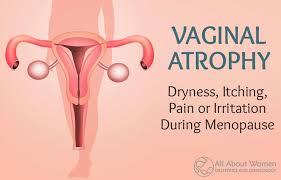 VAGINAL ATROPHY: Vaginal Dryness, Itching, Pain or Irritation During ...