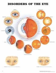 Eye Diseases Chart Laminated Chart Disorders Of The Eye