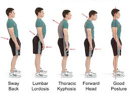 Posture Brace is very comfortable in wear. If you wear it only for 2 hours on daily basis, will see its effect within a week. Is OK to use correcting my body posture? - Quora