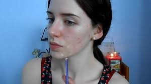 melanie murphy how to cover acne scars simple makeup transformation routine independent ie