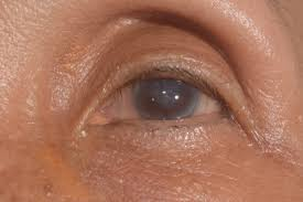what are the causes of corneal edema