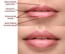 volbella plumps lips corrects