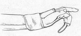 Дипломная работа Лечебная физическая культура при переломах кисти  Дипломная работа Лечебная физическая культура при переломах кисти ru