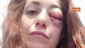 All together now, Giuliana Danzè picchiata dal compagno: