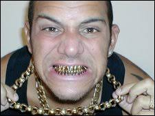 Image result for Brandon Martinez - no teeth