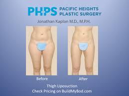 5 myths of liposuction buildmybod health
