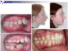 Overbite Correction In Houston And Sugarland Tx