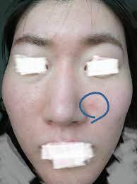 脂 漏 性 皮膚 炎 完治 ブログ