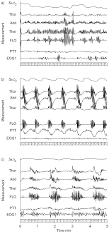 Types Of Breathing Patterns Intermittent Hypoxia And Sleep Disordered Breathing Current