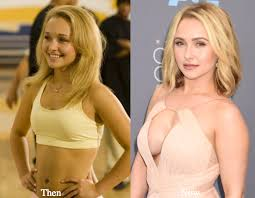 hayden panettiere bra size hayden panettiere plastic surgery before and after photos latest
