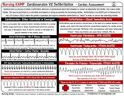 Telemetry Heart Rate Chart Telemetry Defibrillation Vs Cardioversion Cardiac Nursing