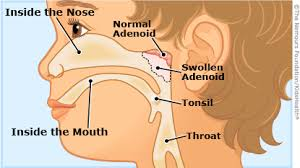 Adenoids And Adenoidectomies For Kids Kidshealth