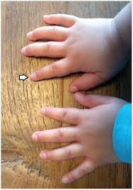 Onychomadesis Po Onemocnění Ruka Noha ústahand Foot Mouth Disease