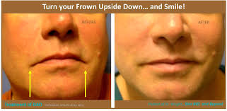 in the past surgery was the only option available to correct the downturned mouth an incision on the lip margin would be made and the result can leave a