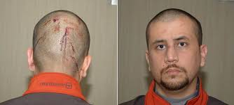 We hope that George Zimmermann takes enough money from NBC that it breaks their back, and the channel goes under. They deserve that and so much ... - George-Zimmerman-Head-Trauma