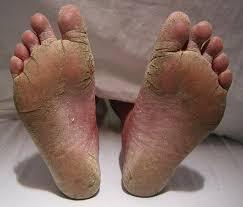 Dureri laba piciorului cauze